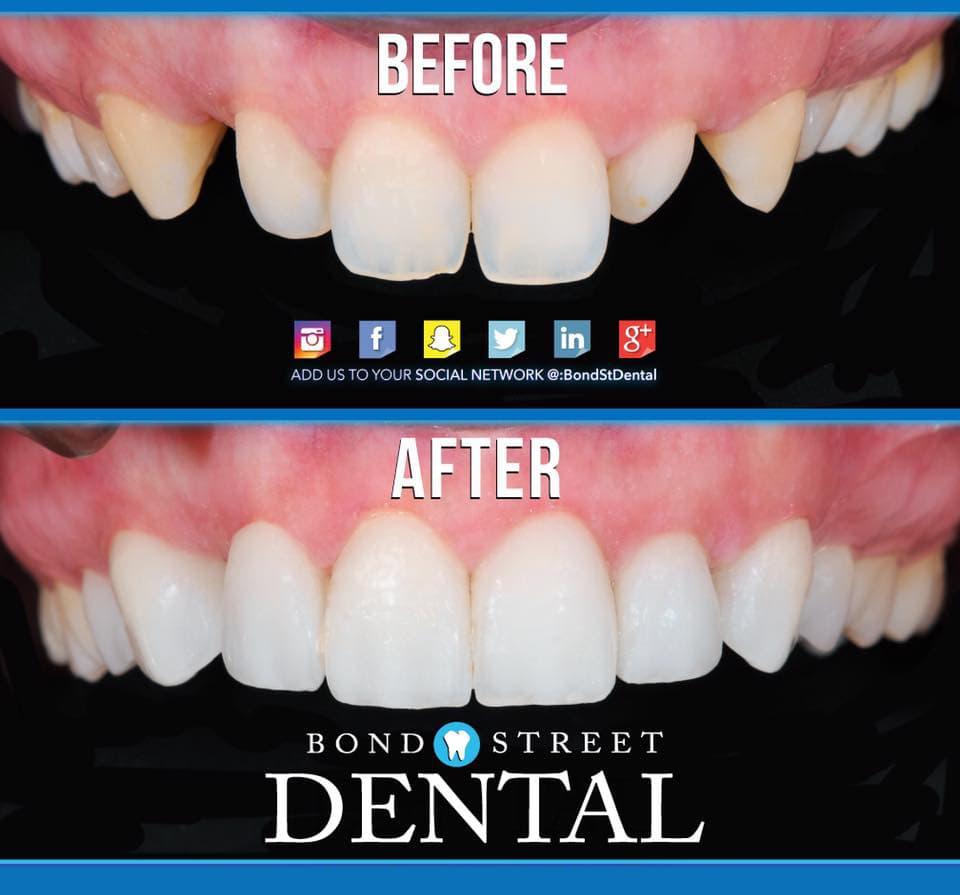 Cosmetic dentistry toronto