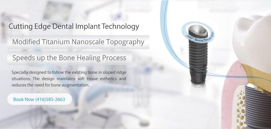 Dental implants technology thumbnail l
