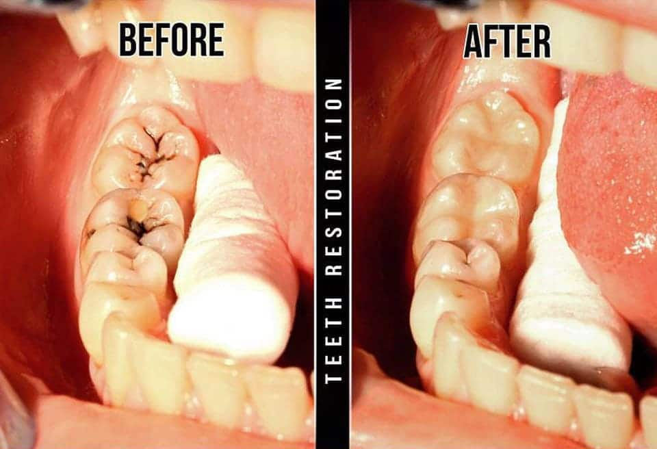 Dental implants toronto before and after