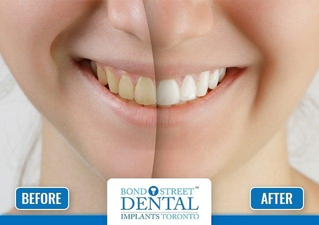Dental Whitening 1