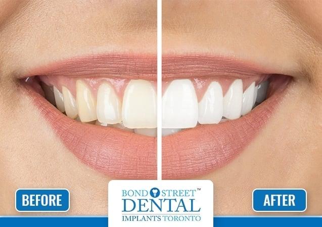 Dental Whitening 2