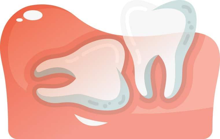 Horizontally Aligned Wisdom Tooth