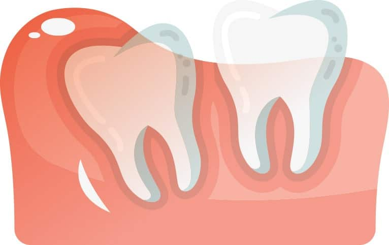 Partially Erupted Wisdom Tooth