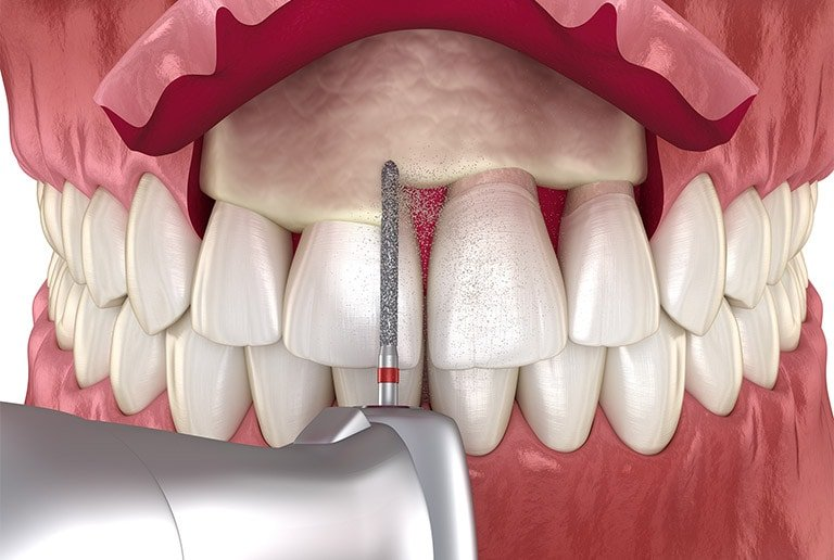 Periodontal Treatment Crown Lengthening