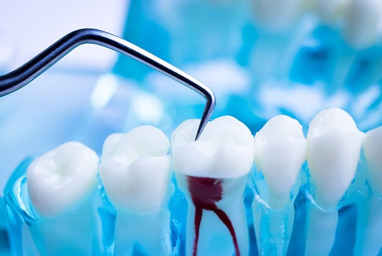Root Canals Surgery