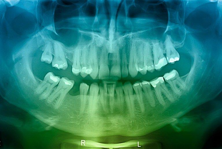 Teeth Cleaning Dental X Rays