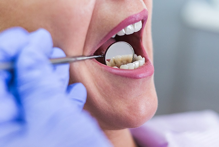 Teeth Cleaning Oral Cancer Screening