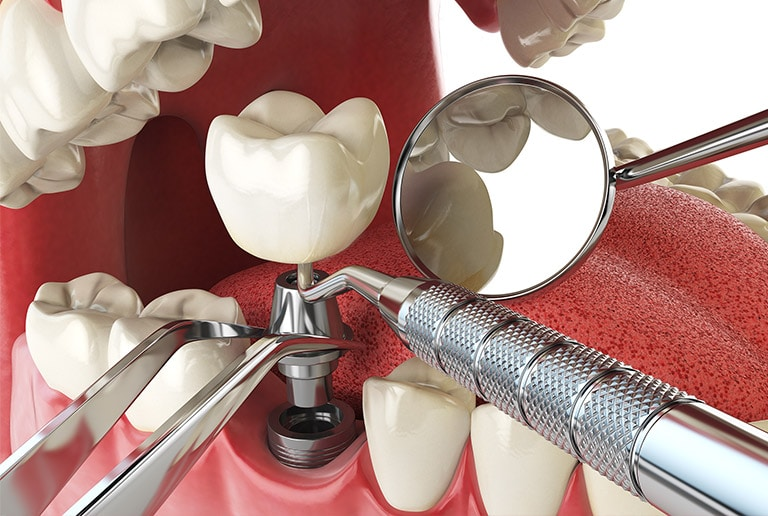 Tooth Extraction For Dental Implants