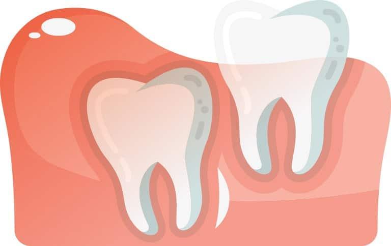 Vertically Aligned Wisdom Tooth