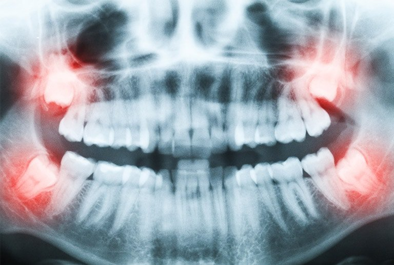 all 4 wisdom teeth removal cost without Insurance