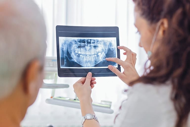 X-Ray cost for wisdom teeth removal