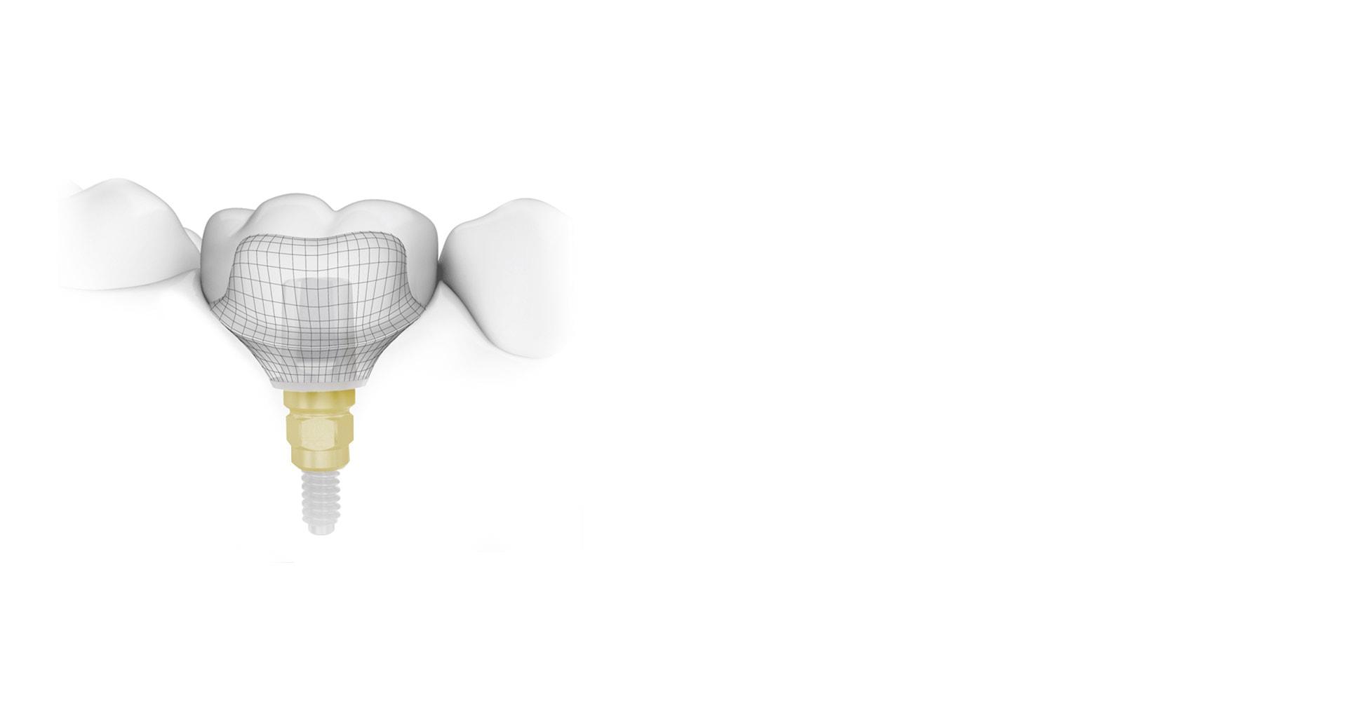 Cutting Edge Dental Implant Technology Toronto
