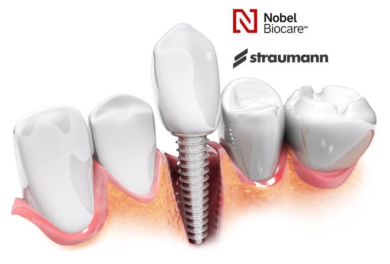 Premium Quality Dental Implants Toronto
