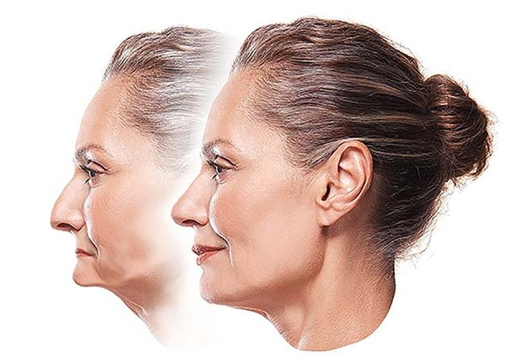 Tooth Loss Leads To Jaw Bone Reduction Toronto